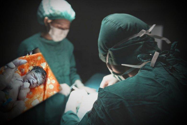 Lekarze usunęli pasożytniczego bliźniaka.
