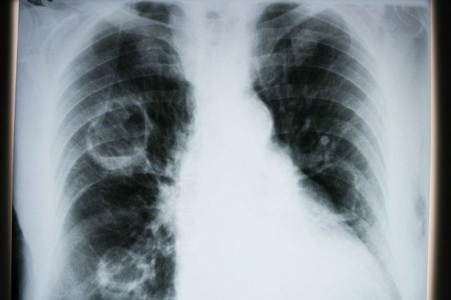 Nową przyczyną raka płuc jest nadmiar witaminy B6 i B12.