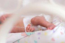 """""""Płód w płodzie"""" zdarza się raz na pół miliona ciąż"""