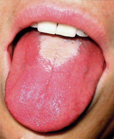 """""""Malinowy"""" język"""