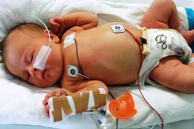 Fot. Pixabay / [url=https://pixabay.com/en/newborn-sick-baby-medical-health-617414/]Tammydz[/url] / [url=https://pixabay.com/en/service/terms/#usage]CC0 Public Domain[/url]