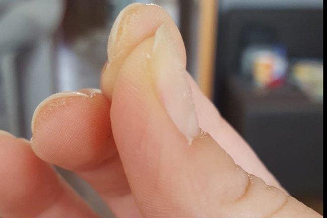 Dziewczyny na grupie facebookowej dzielą się zdjęciami, jak wyglądają ich zniszczone paznokcie. A to nie jedyny skutek.