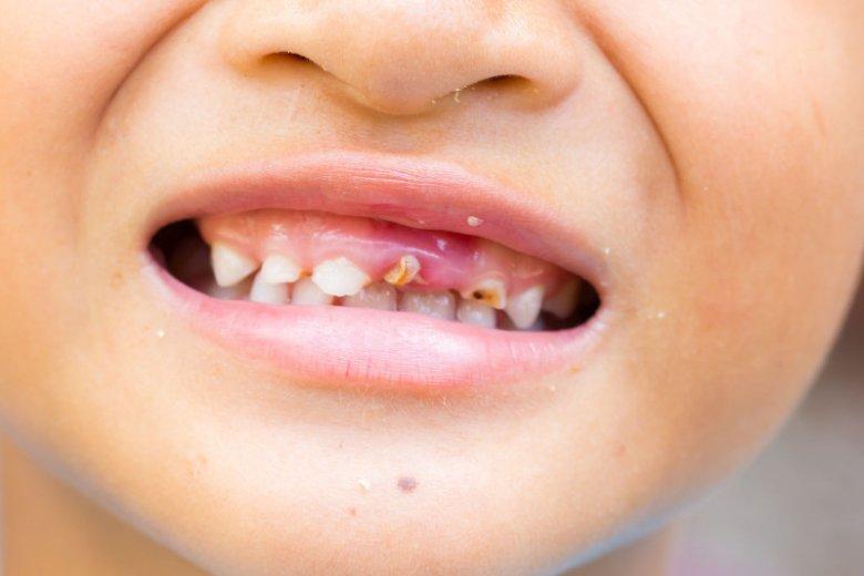 Wpływ wód smakowych na uzębienie dzieci.