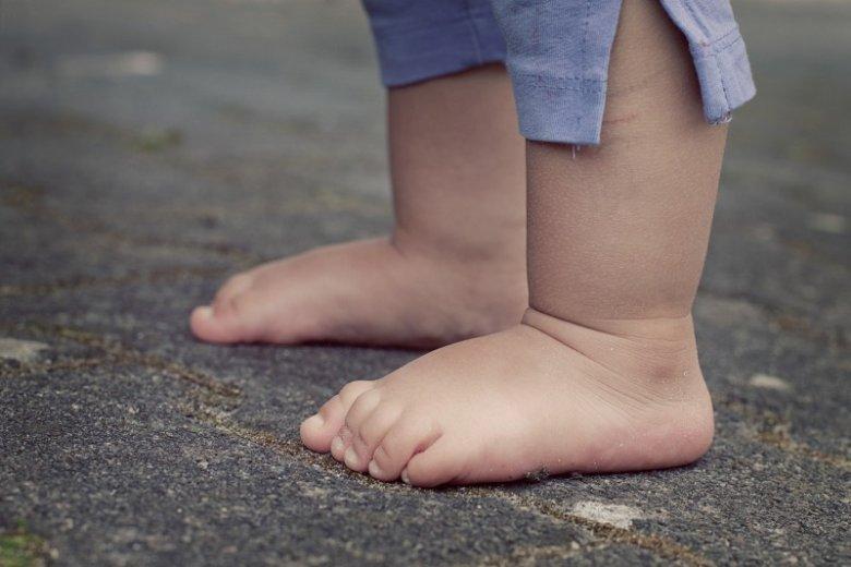Gołębi chód u dziecka – jak go rozpoznać?
