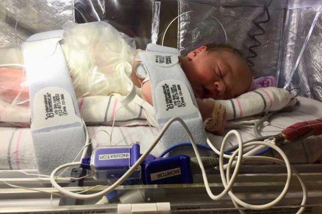 Mała Lily wiele tygodni spędziła na oddziale intensywnej terapii