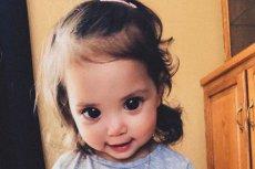 Piękne oczy tej dziewczynki to objaw choroby genetycznej