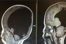 Noach Wall urodził się z 2 proc. mózgu, w 3 lata urósł o 80 proc.
