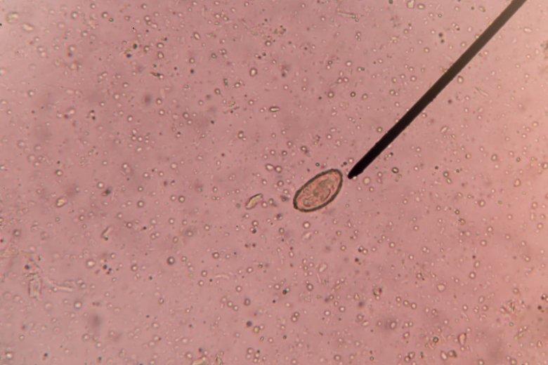 Bąblowiec jest niezwykle agresywnym pasożytem. (zdjęcie- laboratorium)