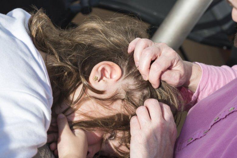 Mama sprawdza, czy córka ma we włosach wszy.