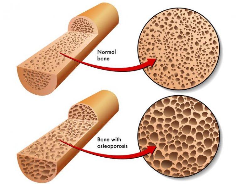 Dieta w osteoporozie.