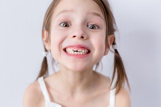 Zęby wymagają opieki od najmłodszych lat życia