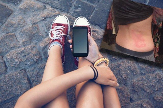 Obudowy telefonów przyczyną bolesnych obrażeń.