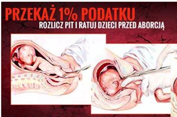 Screen z Facebooka / [url=https://www.facebook.com/FundacjaPro/photos/a.10150241757838631.337524.300745193630/10153982920408631/?type=3&theater] Fundacja Pro - Prawo do Życia [/url]