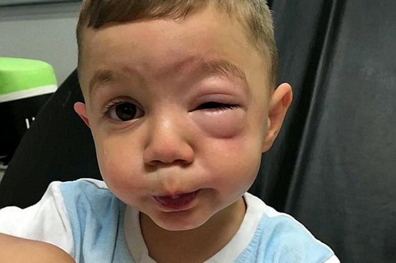 2-letni chłopiec doznał silnej reakcji alergicznej