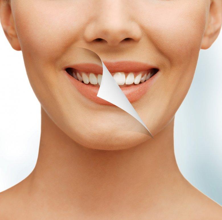 Wybielanie zębów to jeden z najpopularniejszych zabiegów stomatologii estetycznej.