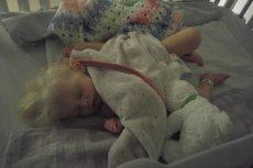 Dziecko w stanie ciężkim z powodu mlecznej anemii