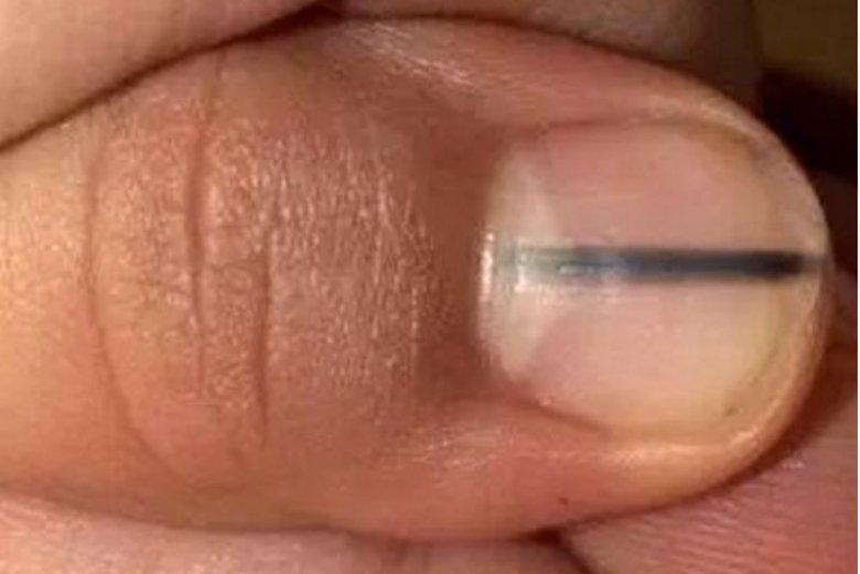 Ta linia na paznokciu może oznaczać czerniaka.