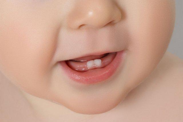 Zęby, które leczą?