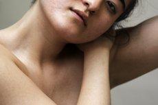 Problemy skórne dotyczą kobiet w każdym wieku