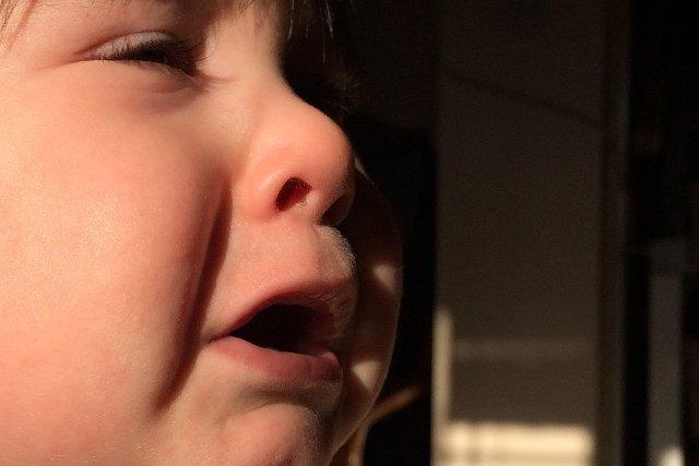 Urazy Głowy U Dzieci Guz Siniak Utrata Przytomności Co