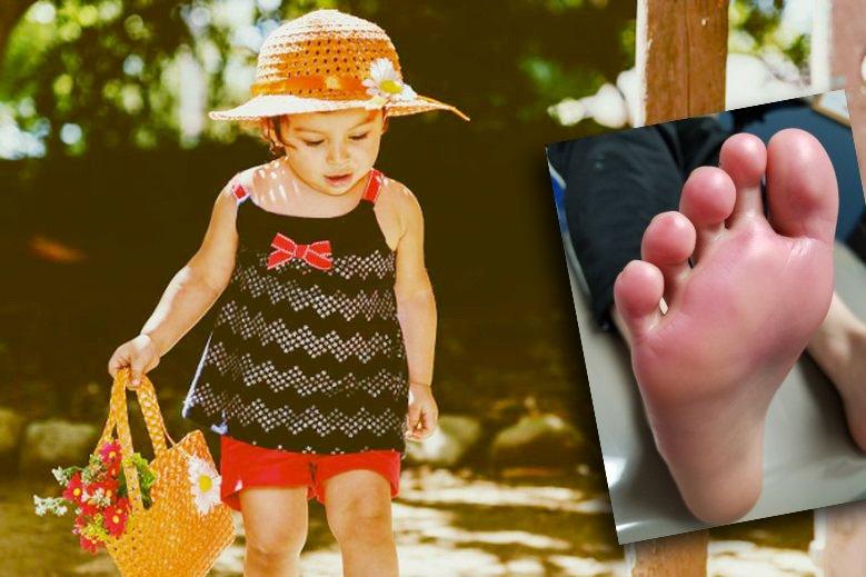 d18a75a2 Świecące buty niebezpieczne dla dzieci. Co robią ze stopami dziecka?    MamaDu.pl