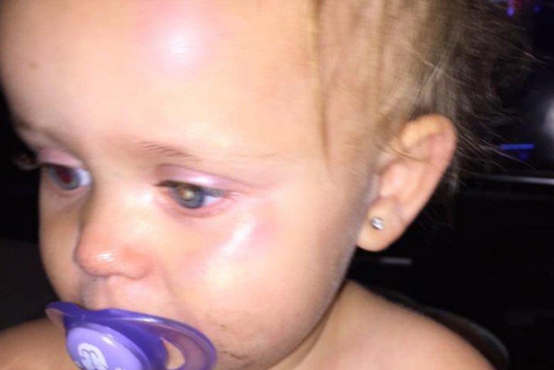 Jak rozpoznać objawy siatkówczaka u dziecka?
